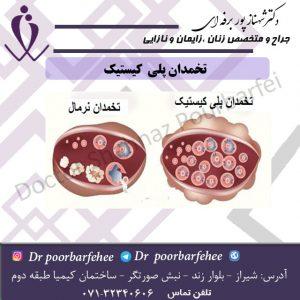 سندرم-تخمدان-پلی-کیستیک.