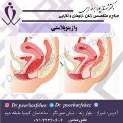 جوانسازی واژن با واژینوپلاستی