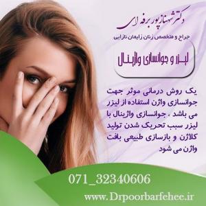 درمان خشکی واژن با لیزر مونالیزا در شیراز
