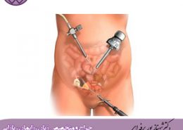 جراحی-کیست-تخمدان-در-شیراز