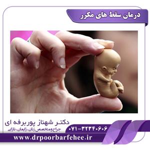 درمان سقط های مکرر