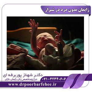 زایمان بدون درد در شیراز