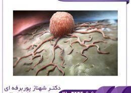 شایع ترین سرطان ها در بین زنان